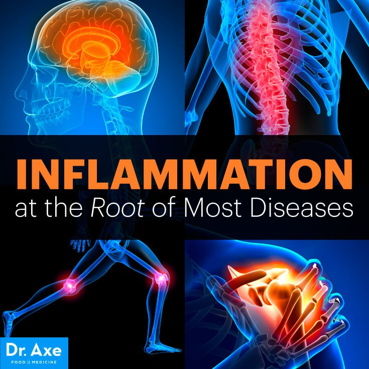 inflammation is more than joint pain